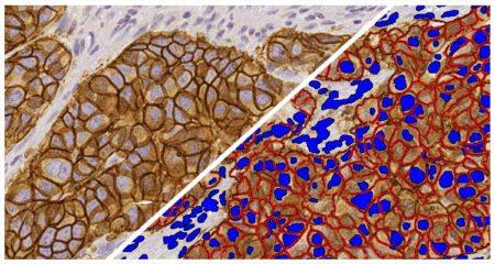 Membrane IHC