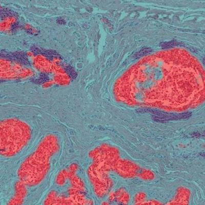 tumor stroma lymphocyte 400x400